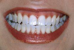 Μετά τη λεύκανση των δοντιών στο ιατρείο με τη μέθοδο ΖΟΟΜ