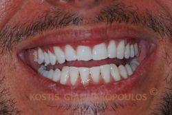 Μετά από λεύκανση των δοντιών στο ιατρείο με τη μέθοδο ΖΟΟΜ