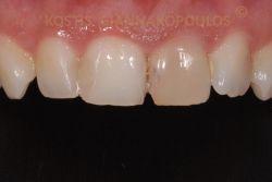 Μεμονωμένο δυσχρωμικό δόντι λόγω τραύματος