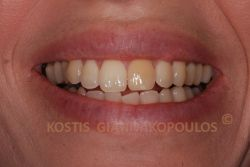 Μεμονωμένο δυσχρωμικό δόντι λόγω απονεύρωσης