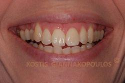 Μετά τη λεύκανση του δυσχρωμικού δοντιού με την περιπατητική μέθοδο λεύκανσης