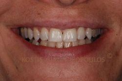 Σύγκλειση του διαστήματος με bonding, χωρίς τρόχισμα των δοντιών