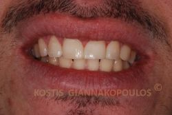 Bonding για το κλείσιμο των κενών χωρίς καθόλου τρόχισμα των δοντιών.