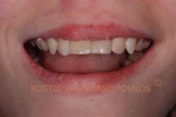 Αποκατάσταση των σπασμένων δοντιών με τη μέθοδο bonding. Η αποκατάσταση με πορσελάνες δεν προτείνεται σε άτομα που βρίσκονται ακόμη στην ανάπτυξη.
