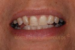 Φθορά στα μπροστινά δόντια