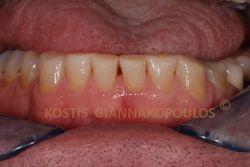 Τοποθέτηση συνθέτων ρητινών (bonding) στα κάτω πρόσθια δόντια. Εκτός από την αισθητική βελτίωση, προλαμβάνεται η επιδείνωση των αποτριβών.