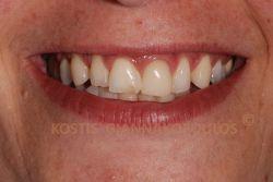 Το χαμόγελο της ασθενούς πριν τη θεραπεία. Διακρίνονται παλιές, ασύμμετρες αποκαταστάσεις.