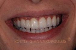 Μετά από ελάχιστο τρόχισμα των δοντιών, τοποθετήθηκαν 7 όψεις πορσελάνης και μια ολοκεραμική γέφυρα μετά πτερυγίων για το δόντι που λείπει. Προ-προσθετικά, έγινε λεύκανση των δοντιών.