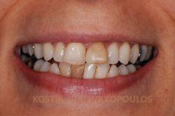 Αντιαισθητικό χαμόγελο, με δυσχρωμικά δόντια άνω και κάτω, λόγω παλιών απονευρώσεων και σφραγισμάτων