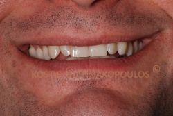 Αντιαισθητικό χαμόγελο με στρεβλοφυία (στραβά δόντια)