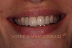 Μετά από λεύκανση των δοντιών, ουλοπλαστική και όψεις πορσελάνης