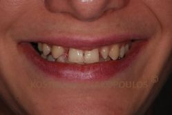 Σύνθετο περιστατικό με συγγενή έλλειψη του πλαγίου τομέα δεξιά και κενά μεταξύ των δοντιών. Ιδανικά, θα έπρεπε πριν από τις όψεις πορσελάνης να γίνει ορθοδοντική για να διευθετηθεί σωστά ο χώρος (να γίνουν ομοιόμορφα τα κενά).