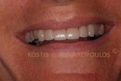 Το χαμόγελο μετά την τοποθέτηση όψεων πορσελάνης. Αυτή η θεραπεία μπορεί να θεωρηθεί και ως lifting δοντιών.