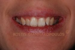Στραβά δόντια (στρεβλοφυία) στην άνω γνάθο.