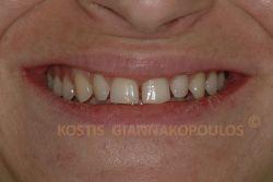 Διαστήματα μεταξύ των δοντιών και ανάστροφη γραμμή γέλιου (τα πίσω δόντια φαίνονται πιο μακριά από τα πρόσθια)