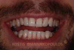 Μετά την τοποθέτηση 2 όψεων πορσελάνης στους πλάγιους κεντρικούς τομείς. Πριν τις όψεις έγινε λεύκανση των δοντιών.