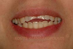 Ανάστροφη γραμμή γέλιου και κακό σχήμα των δοντιών