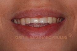 Αποκατάσταση του χαμόγελου με όψεις πορσελάνης