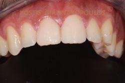 Τοποθέτηση 2 όψεων πορσελάνης, με ελάχιστο τρόχισμα των δοντιών, χωρίς καν αναισθησία