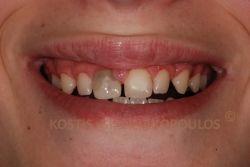 Διαστήματα μεταξύ των δοντιών, σπασμένα δόντια, με παλιές αποκαταστάσεις και απονευρώσεις