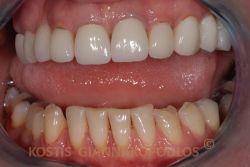 Η ασθενής προσήλθε παραπονούμενη για τα δυσχρωμικά και φθαρμένα κάτω δόντια της. Επάνω, υπάρχουν παλιές ολοκεραμικές στεφάνες.