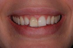 Μεμονωμένο δυσχρωμικό δόντι που δεν ανταποκρίνεται στη λεύκανση