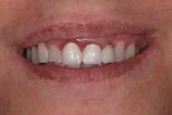 Πριν τη θεραπεία. Περιστατικό με παλαιά γέφυρα που έχει προκαλέσει ουλίτιδα στην πρόσθια περιοχή και χρώμα που δεν ταιριάζει με των φυσικών δοντιών. Παρατηρούμε και φθορά στα φυσικά δόντια.