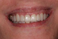 Η θεραπεία περιελάμβανε θεραπεία της ουλίτιδας, αντικατάσταση της παλιάς γέφυρας με γέφυρα ζιρκονίας και όψεις πορσελάνης στα υπόλοιπα δόντια.