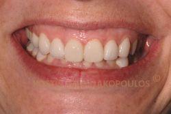 Το χαμόγελο της ασθενούς μετά την τοποθέτηση ολοκεραμικών στεφανών