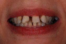 Περιστατικό με έντονη κλίση των δοντιών προς τα έξω και μεγάλα κενά