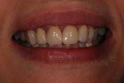 Το χαμόγελο μετά την τοποθέτηση τεσσάρων ολοκεραμικών στεφανών