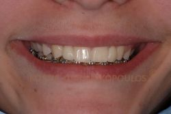 Το χαμόγελο μετά την τοποθέτηση δύο ολοκεραμικών γεφυρών με πτερύγια. Η εναλλακτική λύση της συμβατικής γέφυρας θα απαιτούσε το σημαντικό τρόχισμα των γερών δοντιών δίπλα στα κενά.