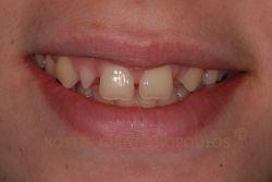 Περιστατικό με διαστήματα μεταξύ των δοντιών. Επίσης, υπάρχει συγγενής έλλειψη του ενός πλαγίου και ο άλλος είναι νάνος.