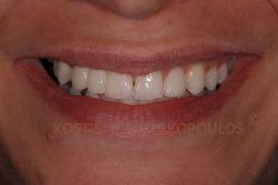 Μετά από λεύκανση των δοντιών και αποκατάσταση με ολοκεραμική γέφυρα με πτερύγια για το δόντι που λείπει (με ελάχιστο τρόχισμα των δοντιών) και όψεις πορσελάνης. Προσέξτε ότι ενώ στους κεντρικούς δεν έχει γίνει τίποτα, το αποτέλεσμα είναι αρμονικό.