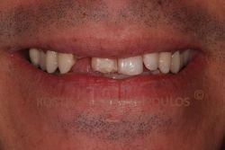 Κάταγμα προσθίων δοντιών, τα οποία ήταν δυχρωμικά λόγω απονεύρωσης.