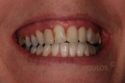 Αντιαισθητικό χαμόγελο με 2 παλιές στεφάνες μεταλλοπορσελάνης στους πλάγιους τομείς και παλιά σφραγίσματα στους κεντρικούς τομείς