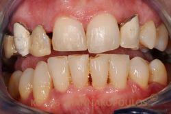 Περιστατικό με παλιές αποκατάστασεις και αντιαισθητικά δόντια.