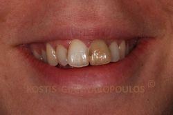 Μεμονωμένο δυσχρωμικό δόντι λόγω τραύματος και απονεύρωσης. Διακρίνονται οι παλιές εμφράξεις.