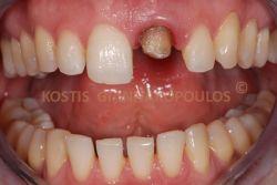 Σπασμένο δόντι που είχε τροχιστεί για μεταλλοκεραμική στεφάνη την οποία ο ασθενής έχασε.