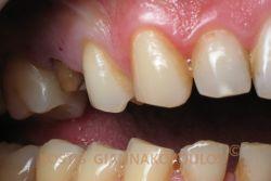 Κατεστραμμένο οπίσθιο δόντι