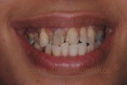 Στο χαμόγελο της ασθενούς φαίνονται πολλές τερηδονικές αλλοιώσεις και άλλα προβλήματα που καθιστούν το χαμόγελο ιδίαίτερα αντιαισθητικό.