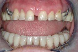 Επένθετη οδοντοστοιχία επί εμφυτευμάτων. Η οδοντοστοιχία κουμπώνει στα εμφυτεύματα και βελτιώνεται θεαματικά η συγκράτησή της.