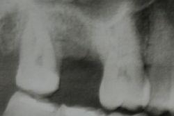 Ακτινογραφία πριν την τοποθέτηση εμφυτεύματος