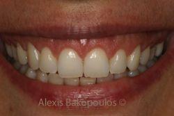 Το χαμόγελο της ασθενούς μετά από επέμβαση ουλοπλαστικής