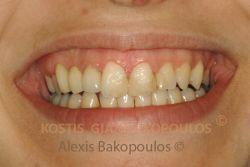 Μέτα από επέμβαση ουλοπλαστικής έχει αποκατασταθεί η αρμονία στα ούλα και τα δόντια έχουν σωστότερες αναλογίες
