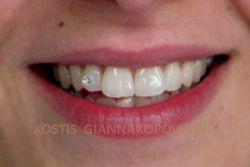 Τοποθέτηση οδοντικού κοσμήματος στον δεξιό πλάγιο τομέα
