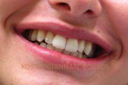 Το κόσμημα στο στόμα νέας κοπέλας