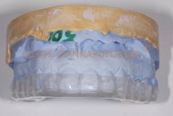 Ο νάρθηκας κατασκευάζεται σε εκμαγείο που κατασκευάζεται από τα δόντια του ασθενή και είναι πλήρως εξατομικευμένος