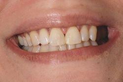 Mock up. Δοκιμαστική τοποθέτηση σύνθετης ρητίνης στα δόντια της ασθενούς. Η ρητίνη αφαιρείται πριν φύγει η ασθενής από το ιατρείο.