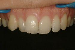 Ασθενής με στραβά δόντια